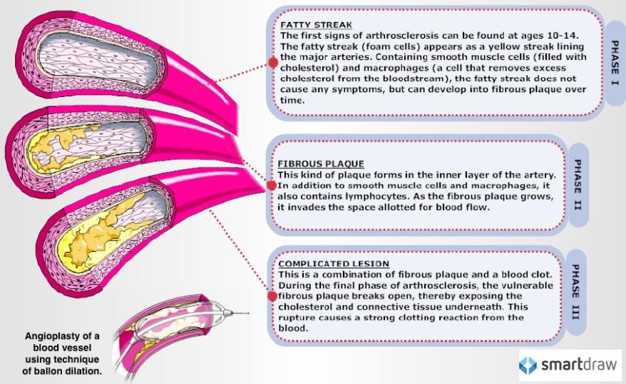 three_phases_atheroscleoris